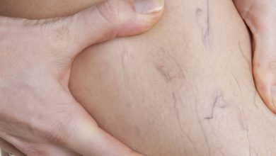 Photo of Traitements des varices : la radiologie interventionnelle recommandée