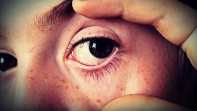 Photo of [Allô Docteur] Virale, bactérienne ou allergique, la conjonctivite ne doit pas être banalisée