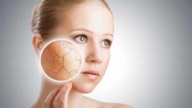 Photo of Visage : prendre soin d'une peau sèche