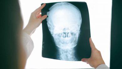 Photo of L'épilepsie : ce mal imprévisible