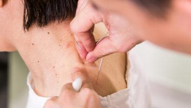 Photo of Acupuncture : pour une meilleure circulation de l'énergie