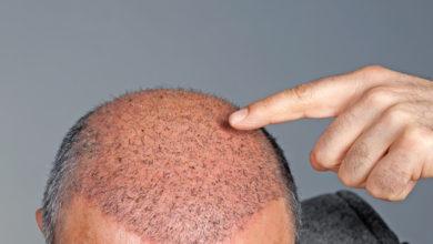 Photo of Des chercheurs ont réussi à faire pousser des poils sur des parties de peau endommagées.