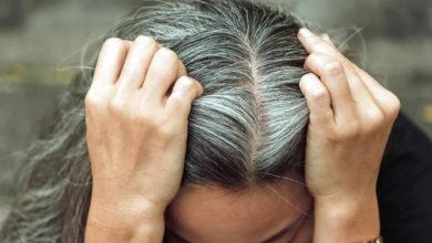 chute de cheveux les femmes aussi concernées