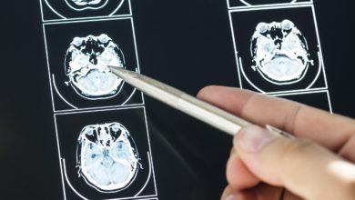 chimiotherapie tumeur cérébrale