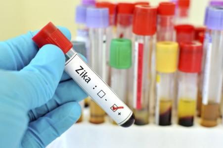 Virus Zika : des anticorps produits par la femme enceinte