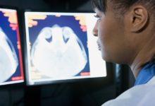 maladies neurologiques mini-cerveaux créés en laboratoire s'activent