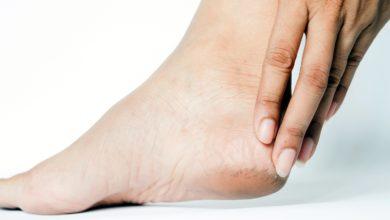 Photo of Déformations du pied : des orthèses plantaires comme solution
