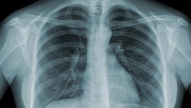 Photo of Maladie irréversible : Les symptômes de la BPCO ne doivent pas être négligés